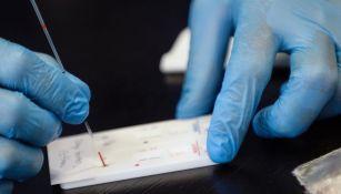 Monos infectados con Covid-19 desarrollaron inmunidad, reveló estudio