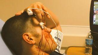 Eddie Edwards reposa en cama tras el golpe de Callihan en Impact