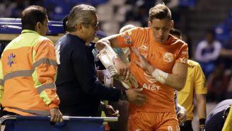 Nicolás Vikonis luego de sufrir un golpe en el rostro